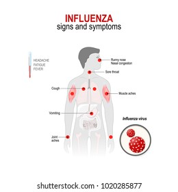 Influenza. Signs and common  symptoms.  Human silhouette with highlighted (red color) internal organs.  Vector diagram for medical use
