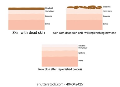 Infographic about Skin replenishing process since dead skin to new one