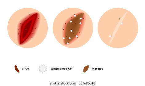 infographic of how the wound heal by platelet and white blood cell vector