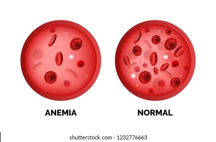 Infographic image of anemia isolated on white background. Realistic vector 3d picture of red blood cells or hemoglobin amount in human blood