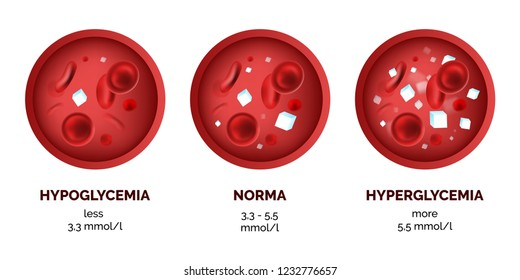 Infographic image of blood sugar levels isolated on white background. Realistic vector 3d picture of human hypoglycemia and hyperglycemia