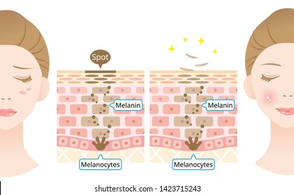 infographic skin cell turnover illustration. Melanin and melanocytes in human skin layer with woman face. beauty and skin care concept