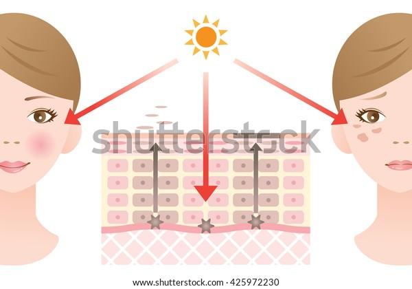 infographic huid illustratie. diagram van omzet en huidvlekvorming