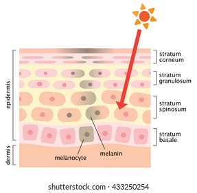 infographic skin illustration. skin mechanism of blotches