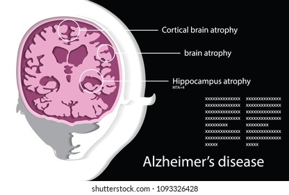 infographic for study brain and Dementia