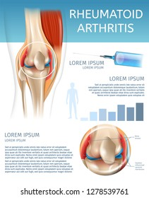Infographic Treatment Method Rheumatoid Arthritis. 3d Banner Vector Illustration Anatomy Human Knee Joint with Diseases. Information Joint Treatment with Medicine Injection for Pain Relief