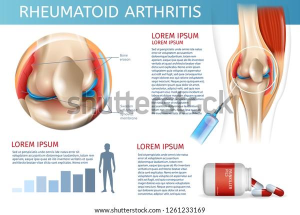 Infographic Treatment Method Rheumatoid Arthritis 3d Stock Vector Royalty Free 1261233169