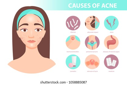infographics of acne. Statistics and causes of the disease