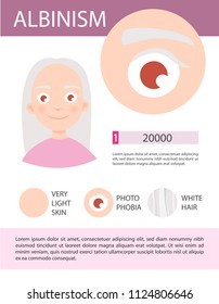 Infographics of albinism