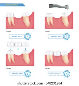 infographics dental bridge used to cover a missing tooth