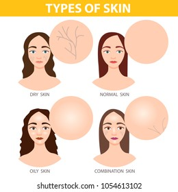 Infographics of girls with different skin types - dry, oily, normal and combination.