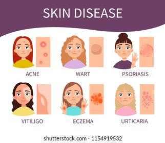 Infographics skin diseases. illustration of cute girls