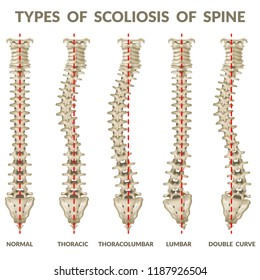 Infographics types of scoliosis of spine. Body posture defect. 3d realistic vector illustration on white background.