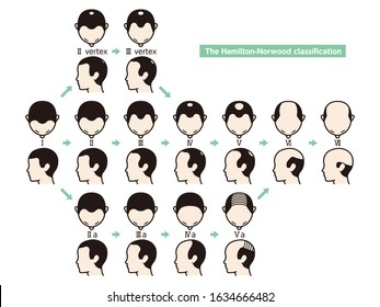 Information chart of hair loss stages and types of baldness illustrated on a male head.