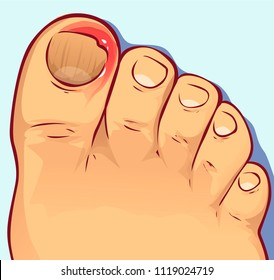Ingrown toenail, vector illustration