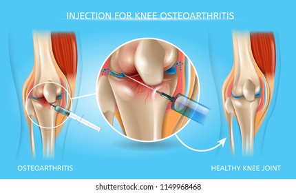 Injection for Knee Osteoarthritis Realistic Vector Medical Scheme. Medications Administration with Syringe Needle to Damaged Joint and Healthy Because of Treatment Knee Anatomical Illustration