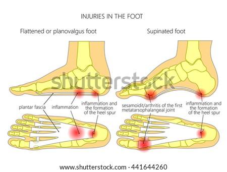 Injuries Foot Plantar Fasciitis Heel Spur Stock Vector Royalty Free