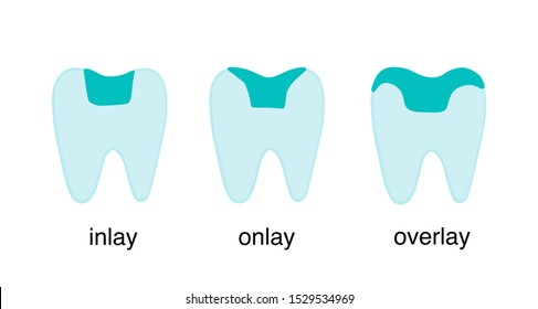 Inlay onlay overlay tooth crown restoration porcelain hand drawn vector illustration type classification dentistry poster