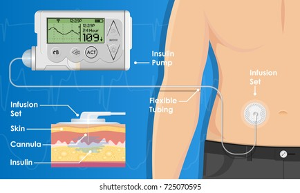 Insulin Infusion Pump on Patient Body Electronic Medical Digital Technology Device Therapy Diabetes Sugar Blood Automatic Control by Programming and Monitoring Glucose with Bio Sensor