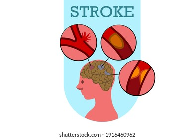 An internal body image showing a brain damaged by abnormal blood vessels in the brain. Causes of stroke are ruptured veins and narrowed veins. Illustrator design for health and medical web banner.