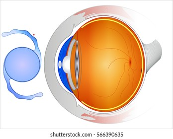 Intraocular lenses (IOLs): are medical devices that are implanted inside the eye to replace the eye's natural lens when it is removed during cataract surgery.