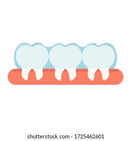 Invisible braces for oral teeth correction. Orthodontic, stomatology concept stock vector illustration. Equipment, object with teth and gum isolated on white background.