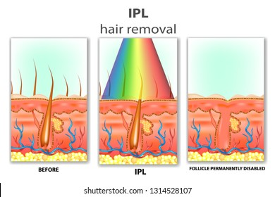 IPL (Intense Pulsed Light). How IPL Hair Removal Works
