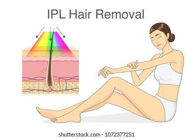 IPL light for hair removal on skin layer and beauty woman touching her skin.  Illustration about cosmetic technology.