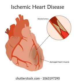 Ischemic Heart Disease. Blocked artery, damaged heart muscle. Anatomy flat illustration. Colorful image, white background.