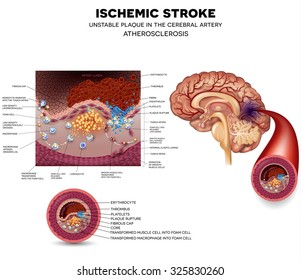 Ischemic stroke in the cerebral artery. Unstable plaque formation and thrombus.