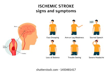 Ischemic stroke signs and symptoms medical poster with infographic flat vector illustration isolated on white background. Informational poster for recognition heart disease.