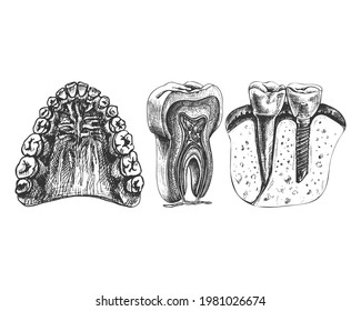 jaw, teeth, gums, sky, graphics, isolated vector drawing, anatomical, detailed sketch, set, tooth, dental implant, colored,