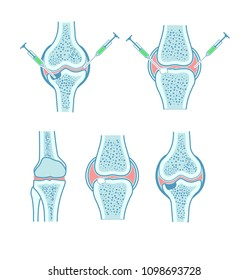 joint bone cartilage injection
