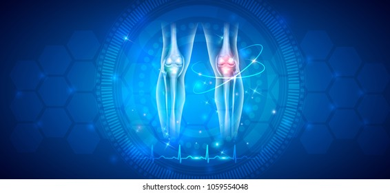 Joint damage treatment abstract blue background with beautiful glow and normal cardiogram at the bottom