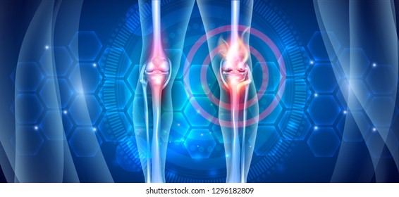 Joint knee problems diagram on an abstract blue scientific background with abstract fire, joint ache concept