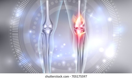 Joint problems bright abstract 3d illustration, burning damaged knee