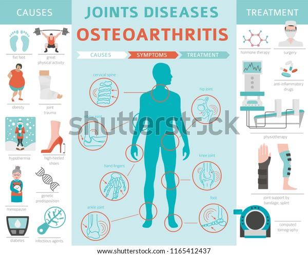 osteoartritis+sintoma+de+la+osteoartritis