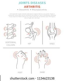 Joints diseases. Arthritis symptoms, treatment icon set. Medical infographic design.  Vector illustration