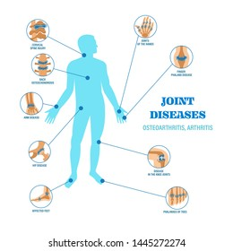 Joints diseases infographic banner. Arthritis, osteoarthritis symptoms, arm hip disease, joint of the hands, finger phalanx disease, back osteochondrosis vector illustration infographic design