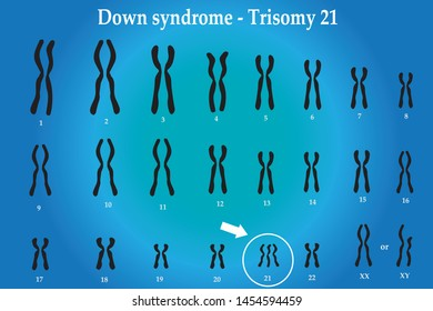 Karyotype of Down syndrome (DS or DNS), also known as trisomy 21, is a genetic disorder caused by the presence of all or part of a third copy of chromosome 21
