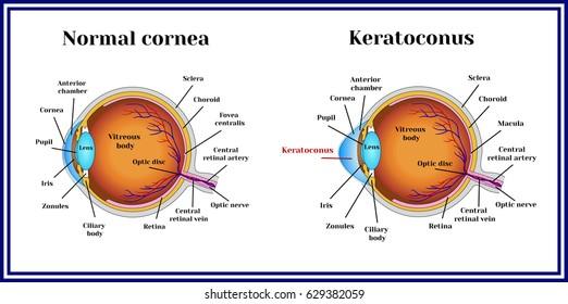 Keratoconus. Dystrophic disease of the cornea.