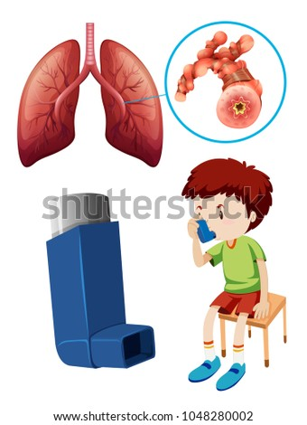 Kid Asthma Puffer Lung Anatomy Stock Vector (Royalty Free ...