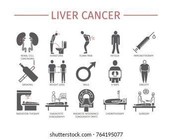 Kidney Cancer Symptoms. Causes. Diagnostics. Flat icons set. Vector infographics.