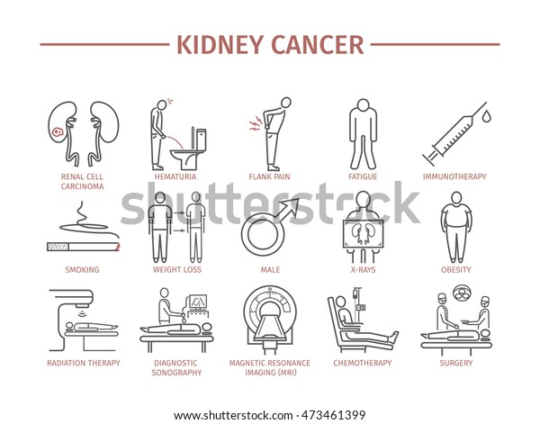 Kidney Cancer Symptoms Causes Diagnostics Line Stock Vector Royalty Free 473461399