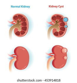 kidney Cyst disease and  Normal kidney.Vector illustrations