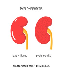 Kidney with pyelonephritis and healthy one. Kidney disease concept. Vector illustration in flat style
