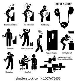 Kidney Stone Icons. Pictogram and diagrams depict signs, symptoms, diagnosis, and treatment of kidney stones.