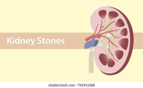 kidney stones, human organ illustration flat style