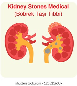 Kidney stones medical concept as a human organ with painful crystalline mineral formations as a medical symbol with a cross .