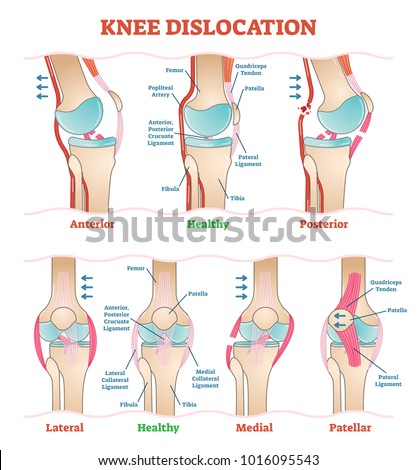 Knee Dislocation Anatomy Diagram Car Wiring Diagrams Explained